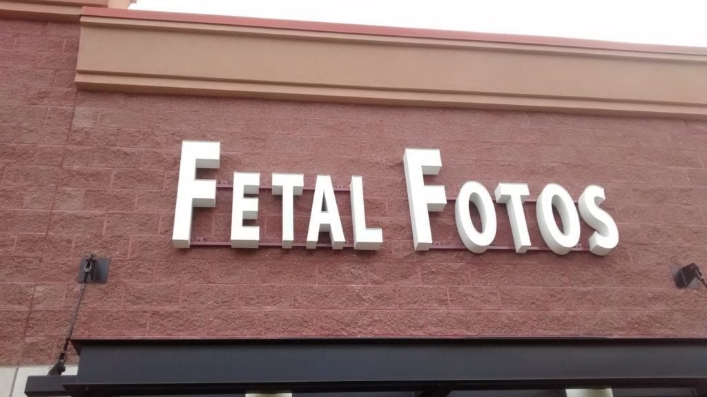 American Fork Fetal Fotos Review: 3D Baby Ultrasounds in Utah