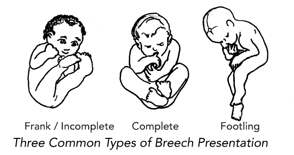 my breech baby  how to turn a breech baby